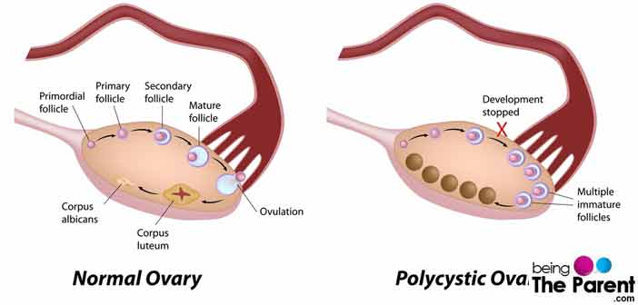 Polycystic Ovary Syndrome-Causes, Symptoms, Diagnosis and ...