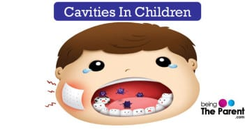 Cavities in children