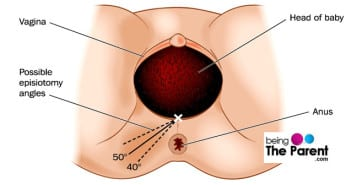episiotomy angles