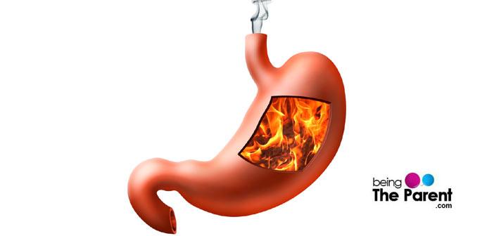 Heartburn in pregnancy