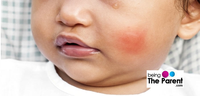 Insect Bites: First Aid And Home Remedies | Being The Parent
