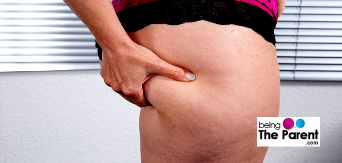 Cellulite in thighs