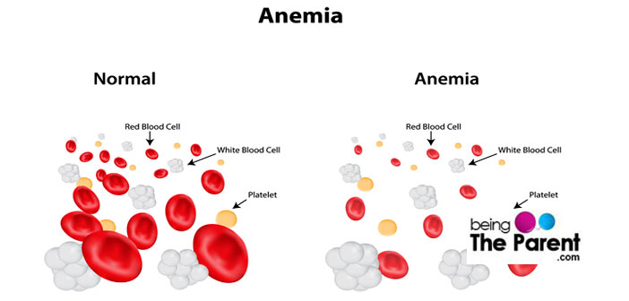 Top 10 Iron Rich Foods To Combat Anemia