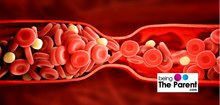 Blood clot during pregnancy