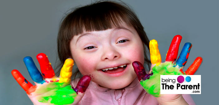 Down syndrome girl