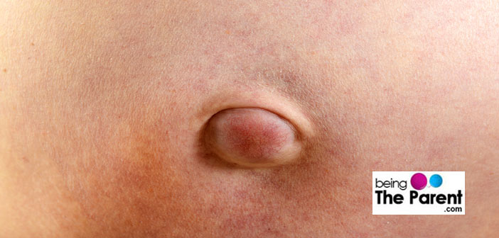 Navel pain in adults