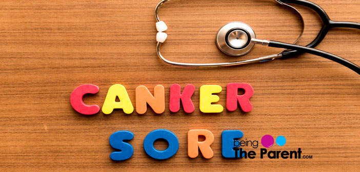 Canker sore treatment