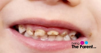 tooth discoloration toddler