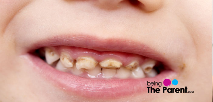 Discolored Teeth In Toddlers Causes Remedies And Treatment Being
