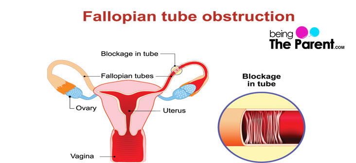 blocked fallopian tubes: types, causes and treatments | being the, Human body