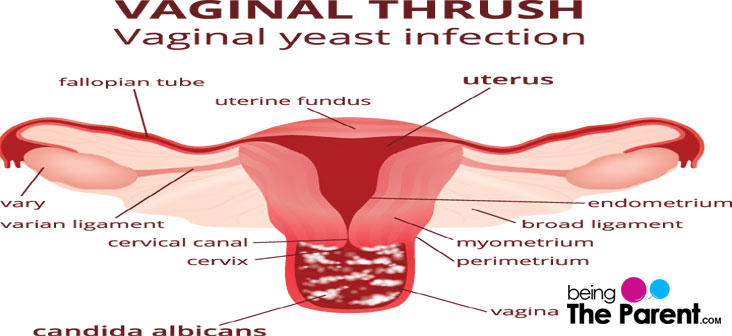 Sex treating yeast infection