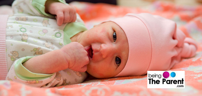 Hives In Babies – Causes, Symptoms, Diagnosis And Treatment