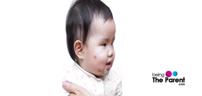 child with Mosquito Bites