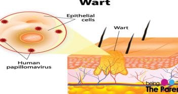 warts in babies
