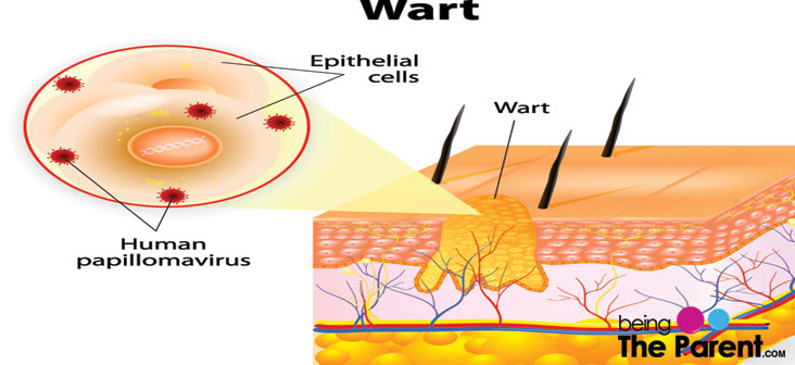 Warts In Babies Everything You Need To Know Being The Parent