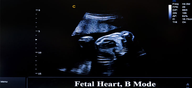 fetal echo