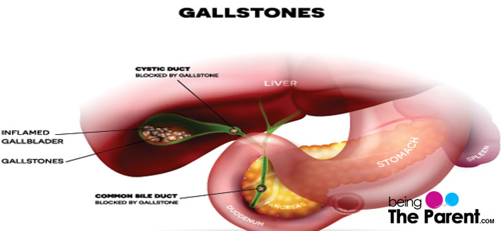 Gallstones During Pregnancy- Everything You Need To Know ...