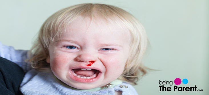Baby Hit Head And Now Has A Small Nosebleed - Dangerous?