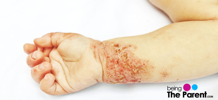 8 Common Skin Problems In Babies And Their Solutions ...