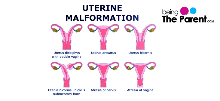 didelphys-uterus-complications