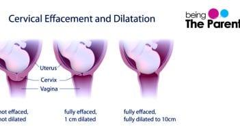 Cervical effacement during pregnancy