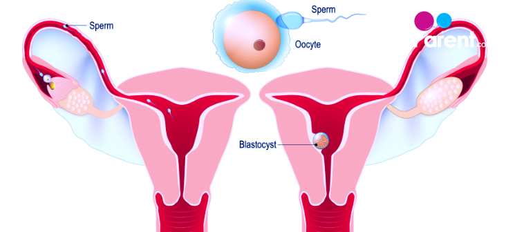 Implantation Bleeding – what are the signs to look out for