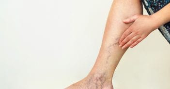 Vericose Veins after pregnancy