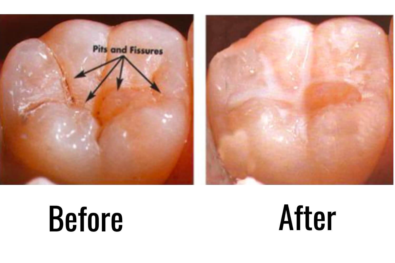 Common Procedures in Pediatric Dentistry